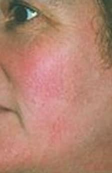 Facial Vein Laser Therapy After