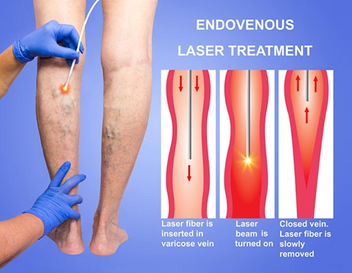 Endovenous Laser Ablation Therapy Toronto