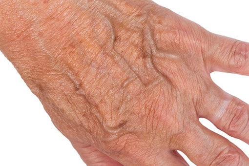 Hand & Facial Veins | Toronto