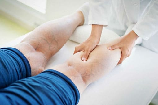 Endovenous ClariVein™ treatment for Varicose Veins