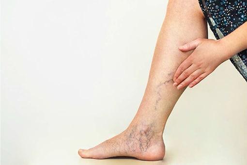 funcționarea pe picioare cu recenzii varicose vene)