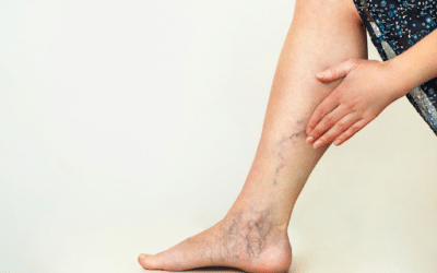 5 Natural Remedies For Varicose Veins
