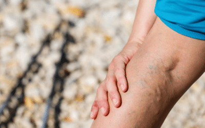 Is The VenaSeal Treatment For Varicose Veins Right For You?